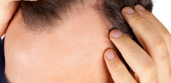 Three Major Hair Loss Causes You Must Handle Carefully